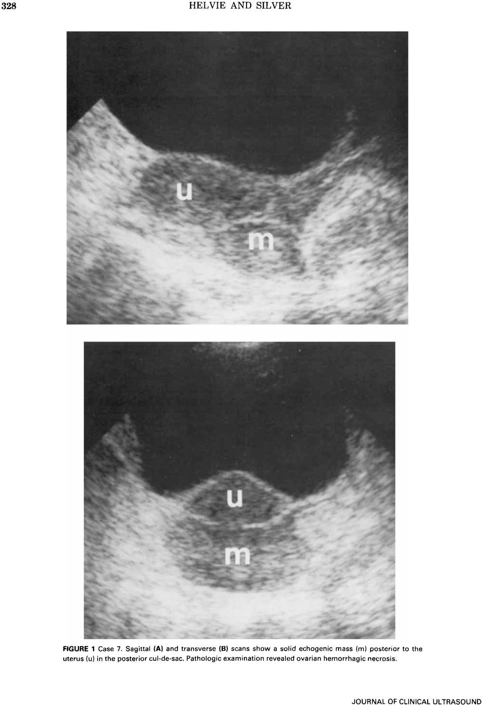 mass (m) posterior to the uterus (u) in the posterior cul-de-sac.