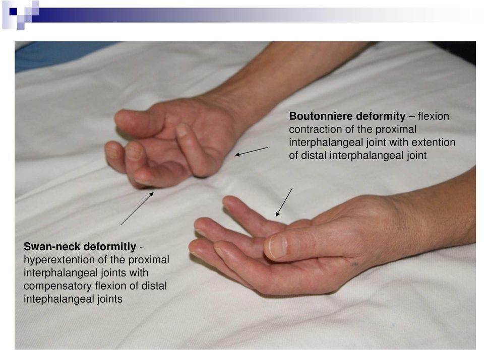 intephalangeal joints Boutonniere deformity flexion contraction