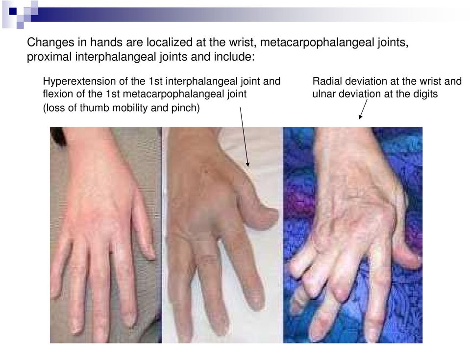 interphalangeal joint and flexion of the 1st metacarpophalangeal joint (loss