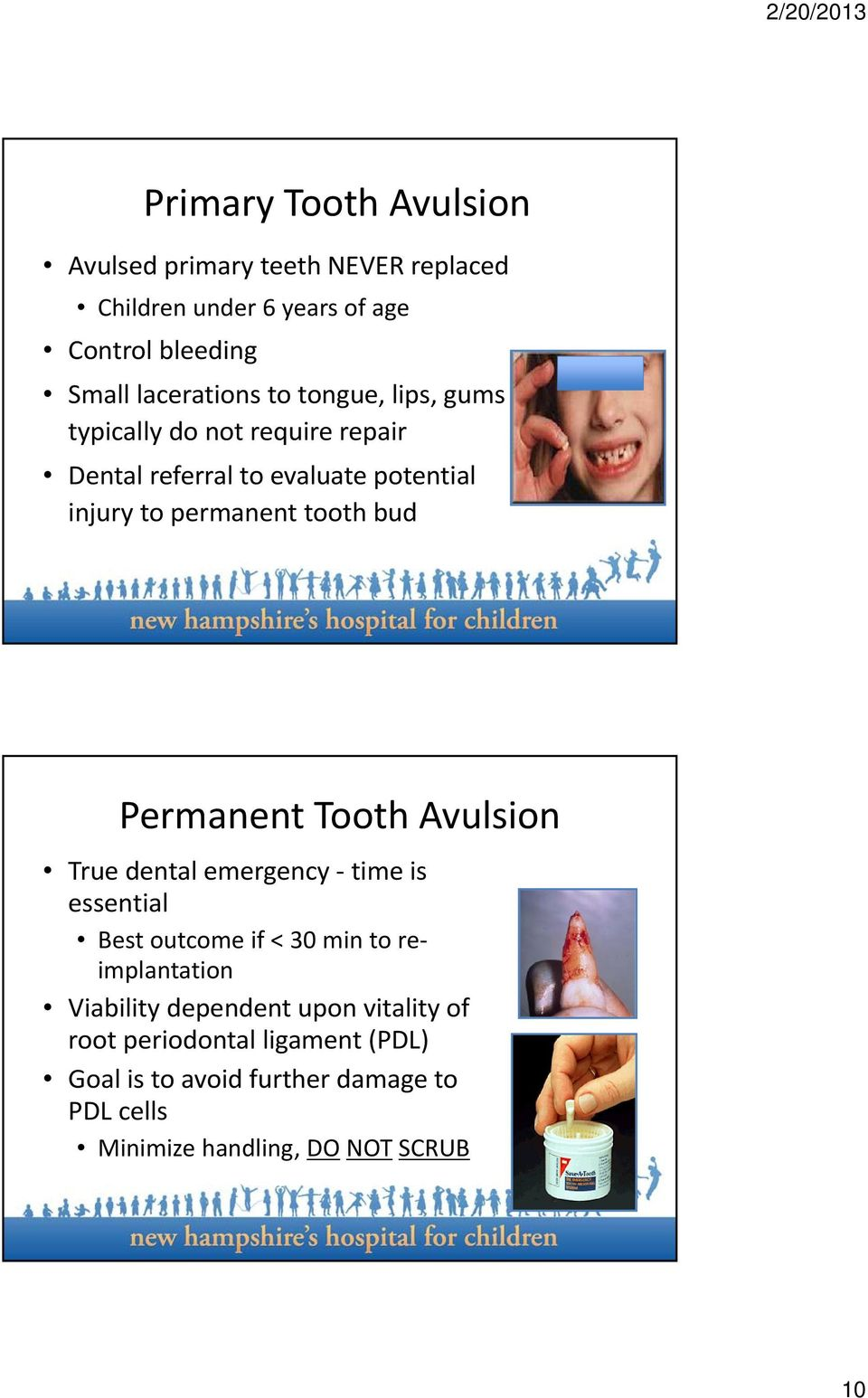 Permanent Tooth Avulsion True dental emergency time is essential Best outcome if < 30 min to reimplantation Viability