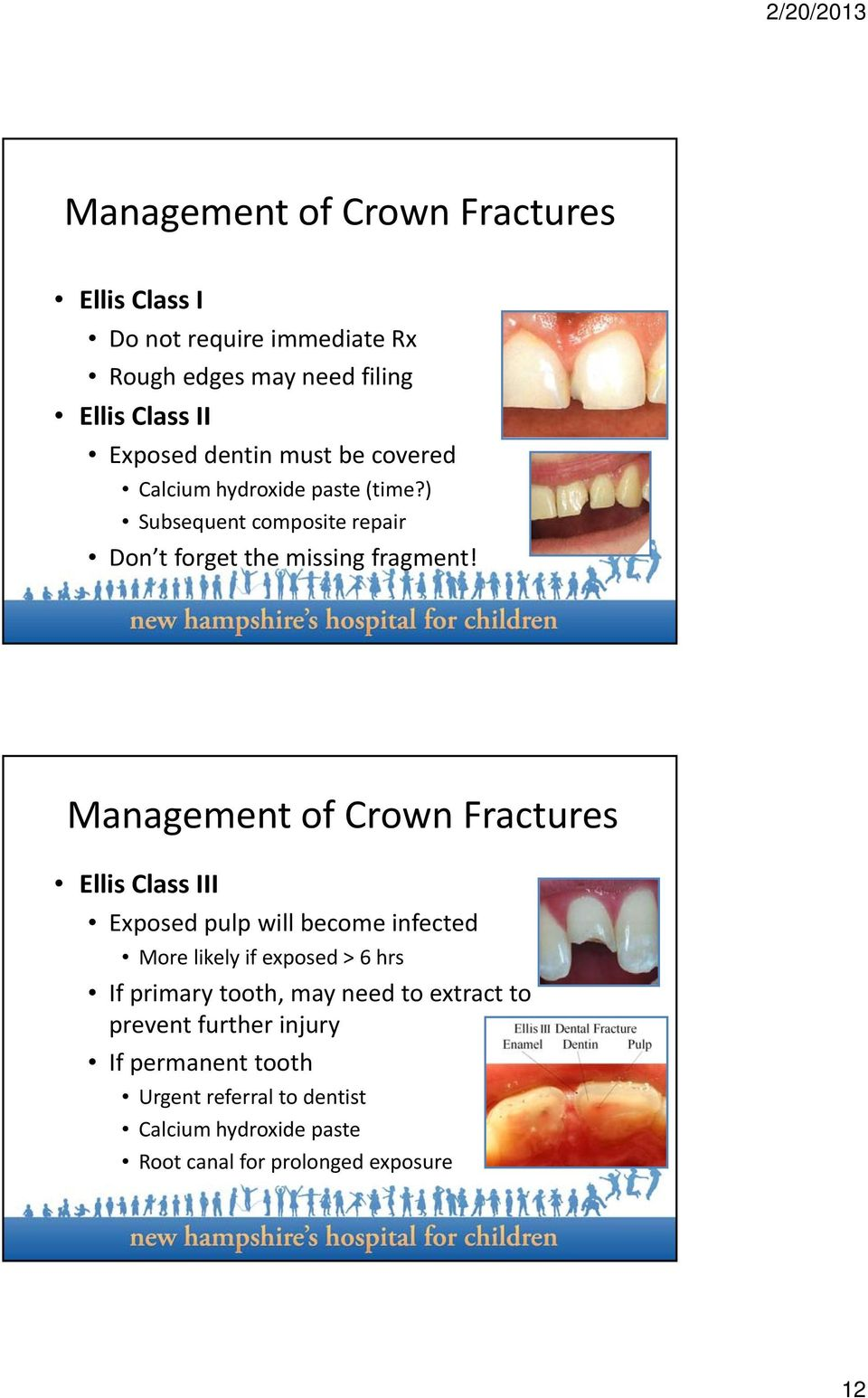 Management of Crown Fractures Ellis Class III Exposed pulp will become infected More likely if exposed > 6 hrs If primary tooth,