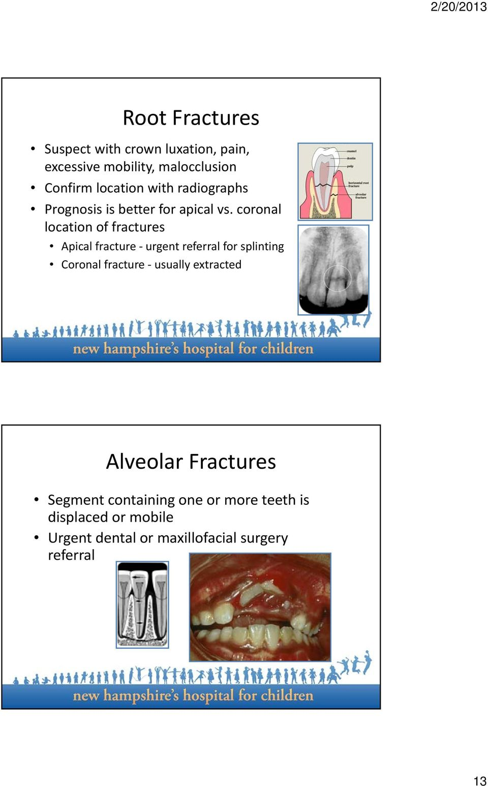 coronal location of fractures Apical fracture urgent referral for splinting Coronal fracture