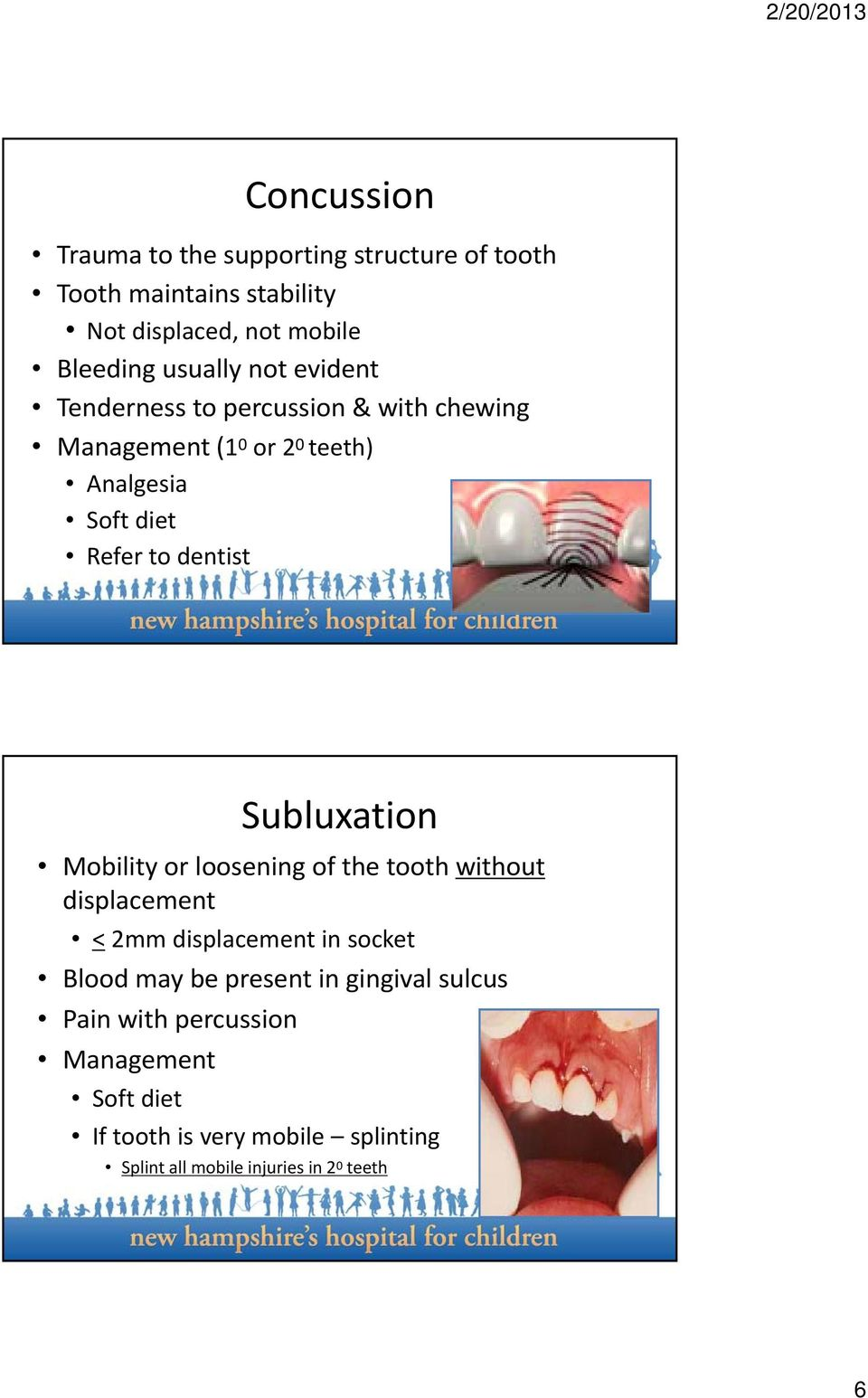 Subluxation Mobility or loosening of the tooth without displacement <2mm displacement in socket Blood may be present in