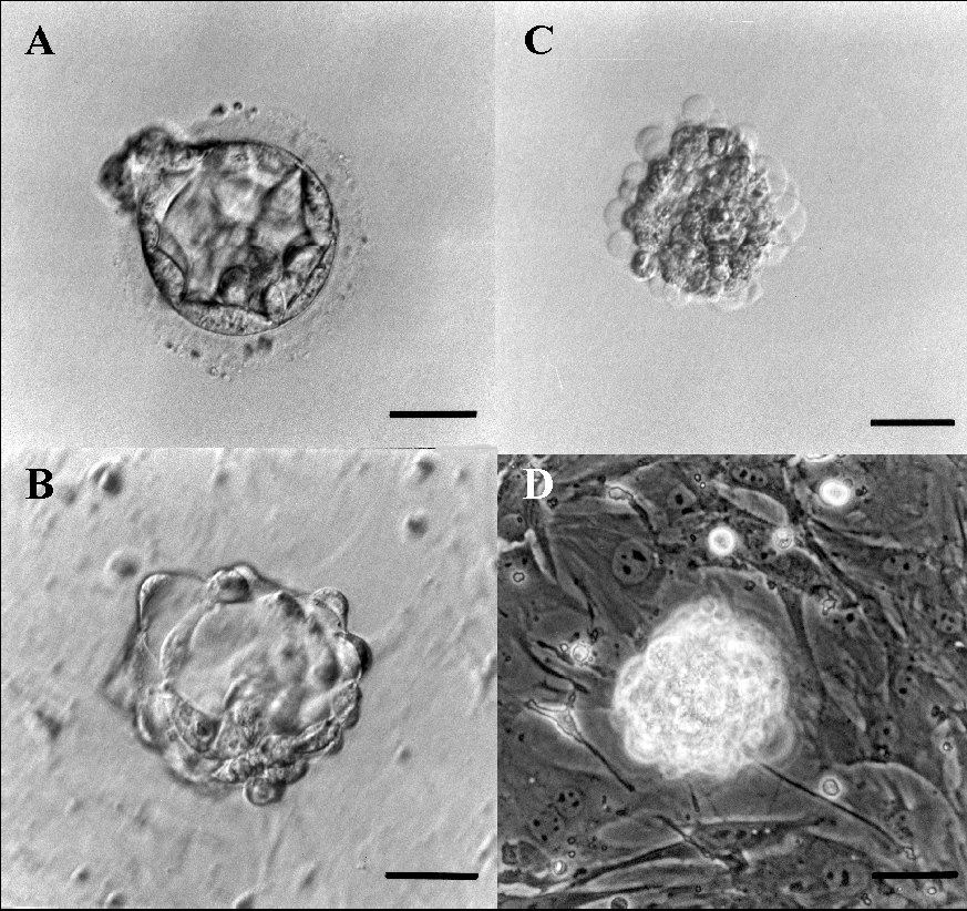 Immunosurgery of a human blastocyst for the