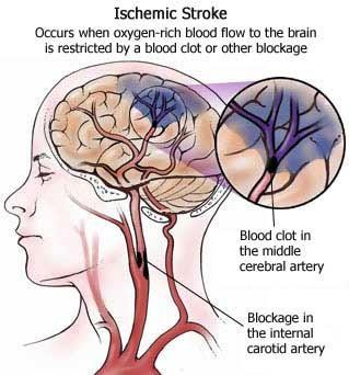 Diseases and Disorders of the Circulatory System Stroke: Happens when a cluster