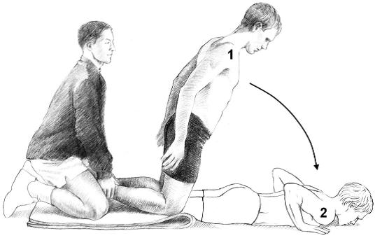 Eccentric hamstring strengthening: Nordic hamstring exercises.