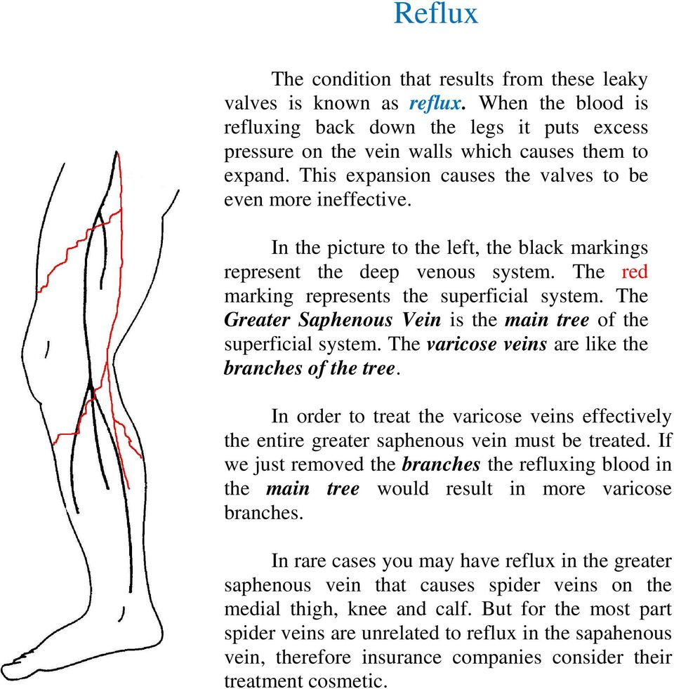 The Greater Saphenous Vein is the main tree of the superficial system. The varicose veins are like the branches of the tree.