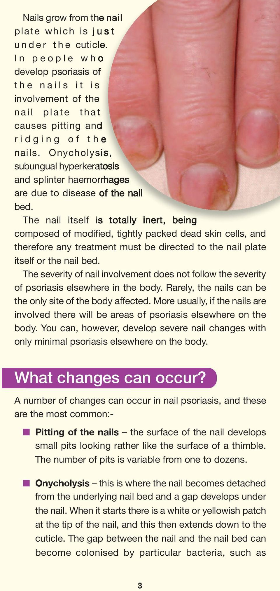 Onycholysis, subungual hyperkeratosis and splinter haemorrhages are due to disease of the nail bed.