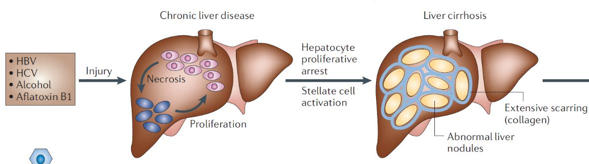Liver Cancer Represents Significant Unmet Need Hepatocellular Carcinoma (HCC) Liver cancer is the 2nd leading cause of cancer death worldwide, and HCC is the most common form of this disease 16,000