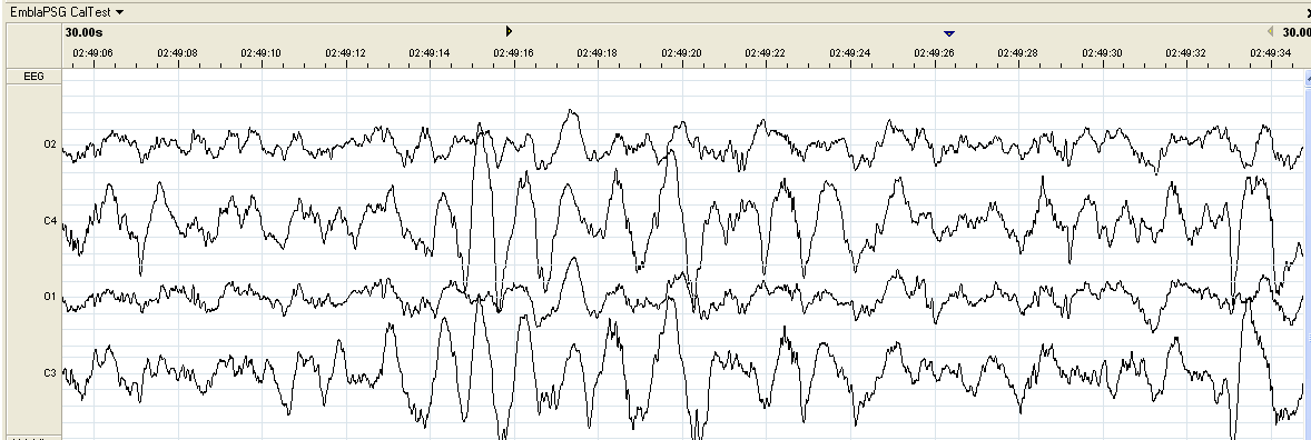 FREQUENCY AMPLITUDE Hz = Cycles Per