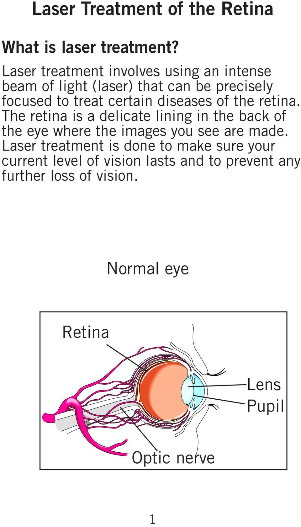 certain diseases of the retina.