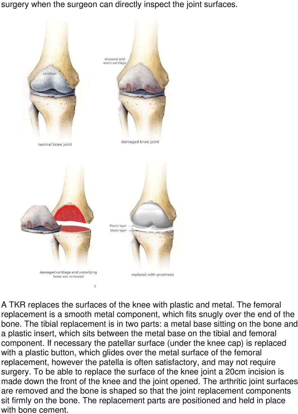The tibial replacement is in two parts: a metal base sitting on the bone and a plastic insert, which sits between the metal base on the tibial and femoral component.