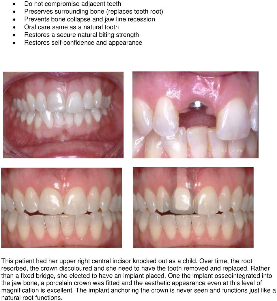 Over time, the root resorbed, the crown discoloured and she need to have the tooth removed and replaced. Rather than a fixed bridge, she elected to have an implant placed.
