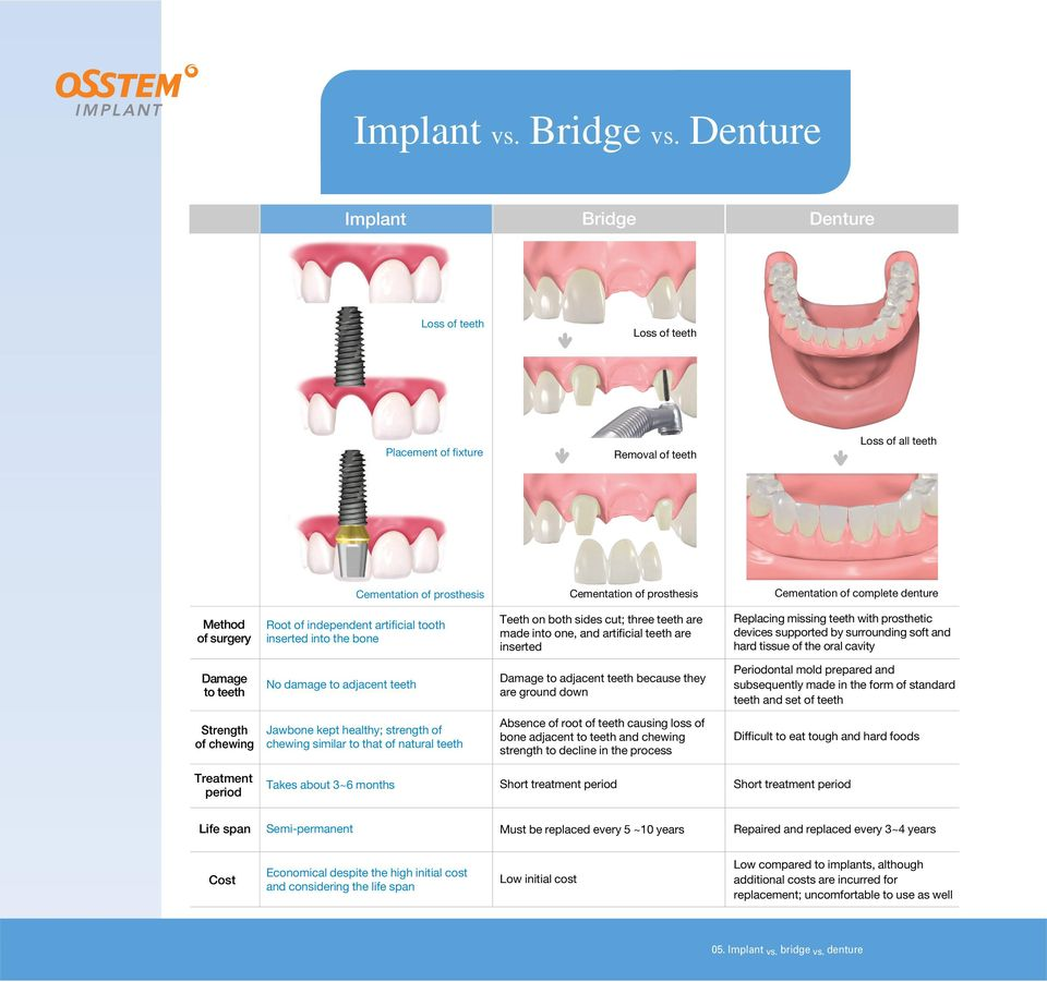 Method of surgery Root of independent artificial tooth inserted into the bone Teeth on both sides cut; three teeth are made into one, and artificial teeth are inserted Replacing missing teeth with
