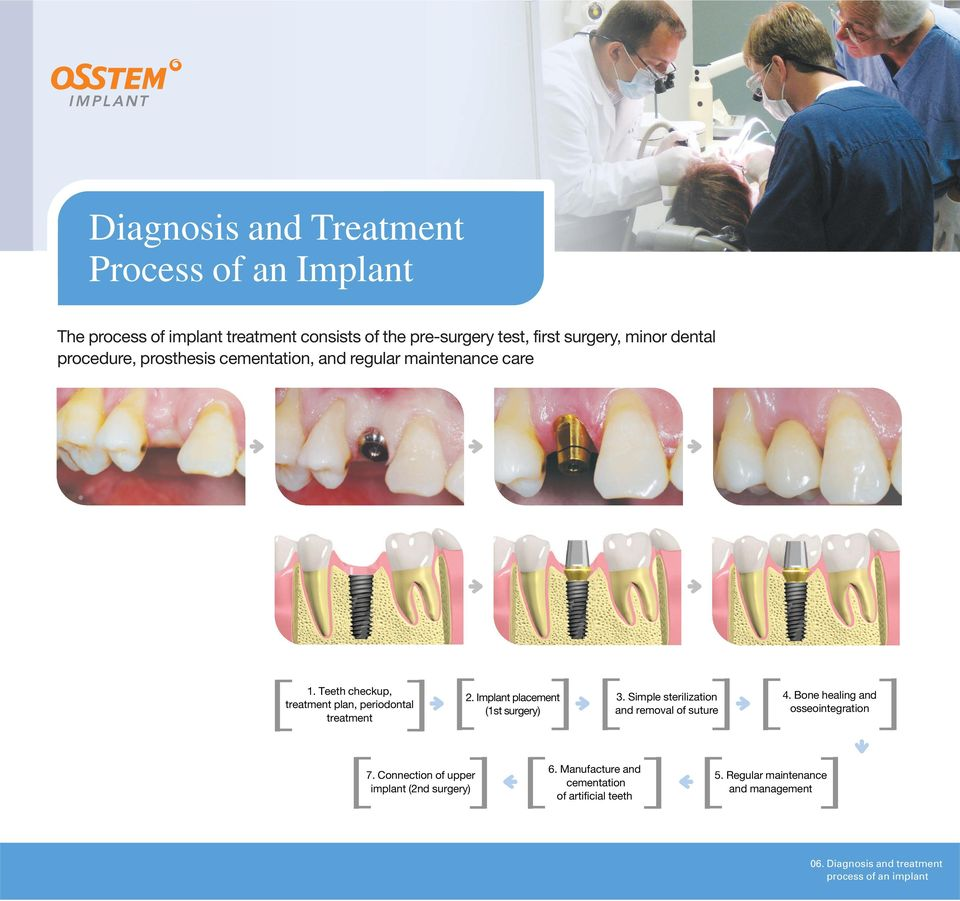 Implant placement (1st surgery) 3. Simple sterilization and removal of suture 4. Bone healing and osseointegration 7.