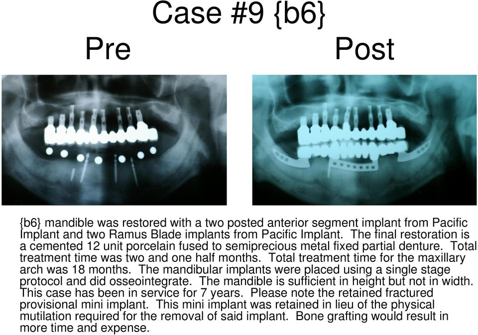 Total treatment time for the maxillary arch was 18 months. The mandibular implants were placed using a single stage protocol and did osseointegrate.