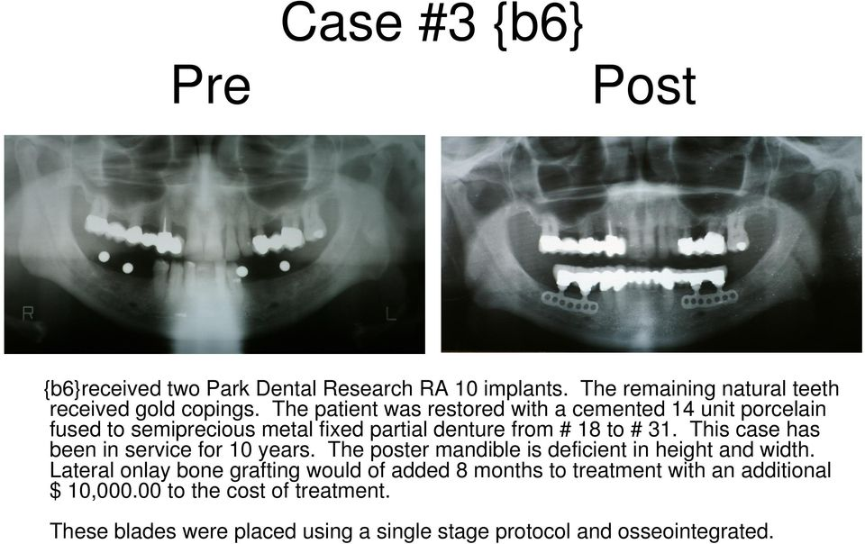 This case has been in service for 10 years. The poster mandible is deficient in height and width.