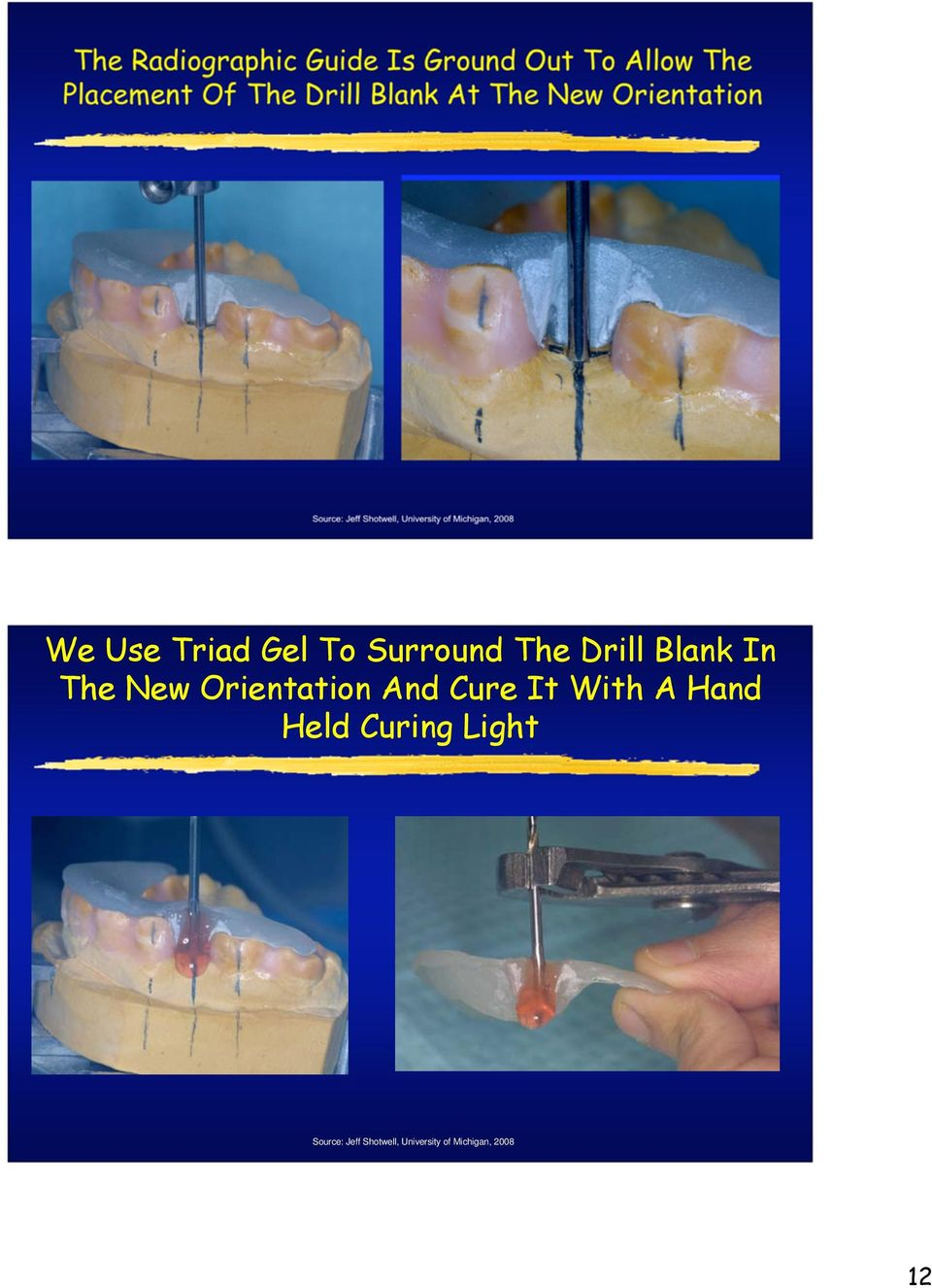 We Use Triad Gel To Surround The Drill Blank In The