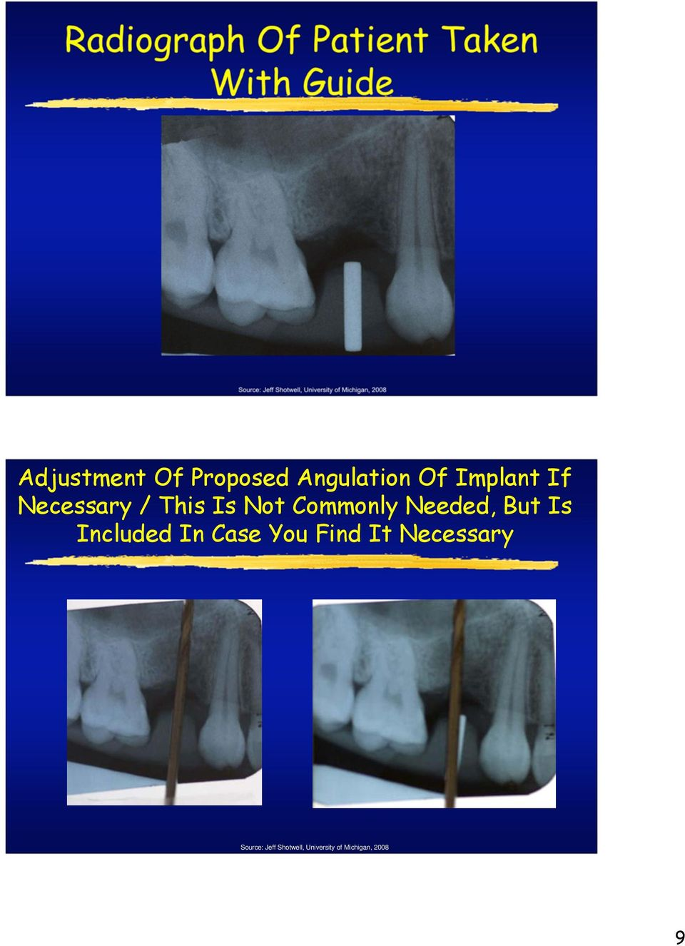 Implant If Necessary / This Is Not Commonly