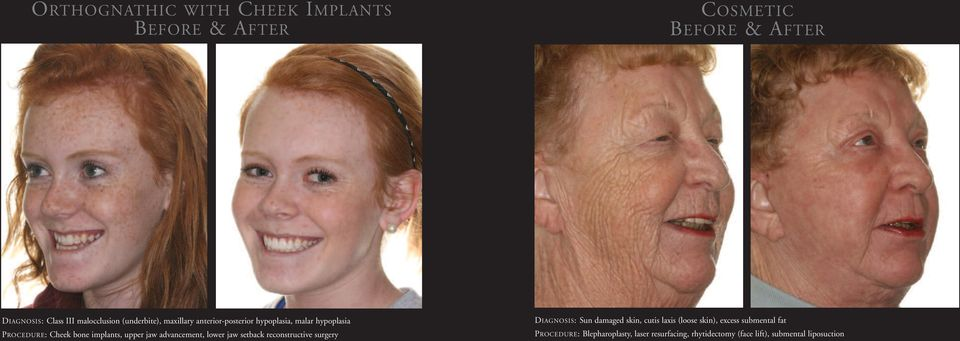 lower jaw setback reconstructive surgery DIAGNOSIS: Sun damaged skin, cutis laxis (loose skin), excess