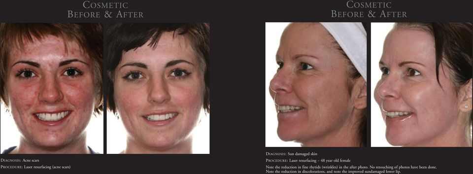 reduction in fine rhytids (wrinkles) in the after photo.