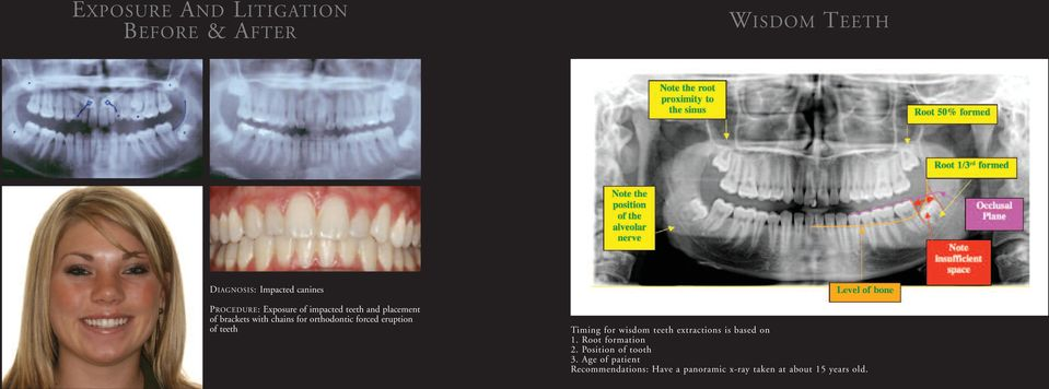teeth Timing for wisdom teeth extractions is based on 1. Root formation 2.