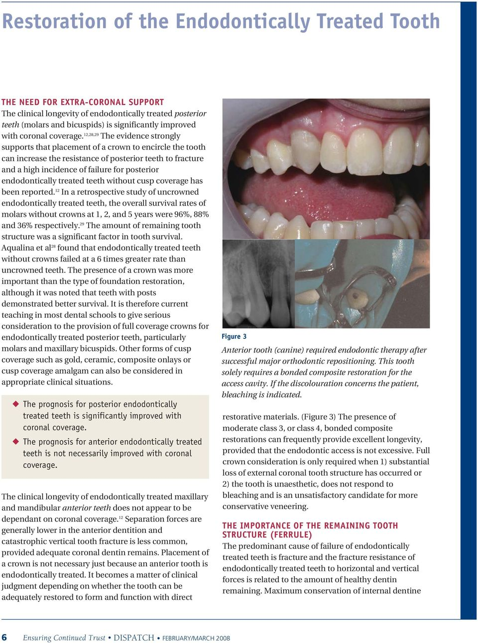 12,28,29 The evidence strongly supports that placement of a crown to encircle the tooth can increase the resistance of posterior teeth to fracture and a high incidence of failure for posterior