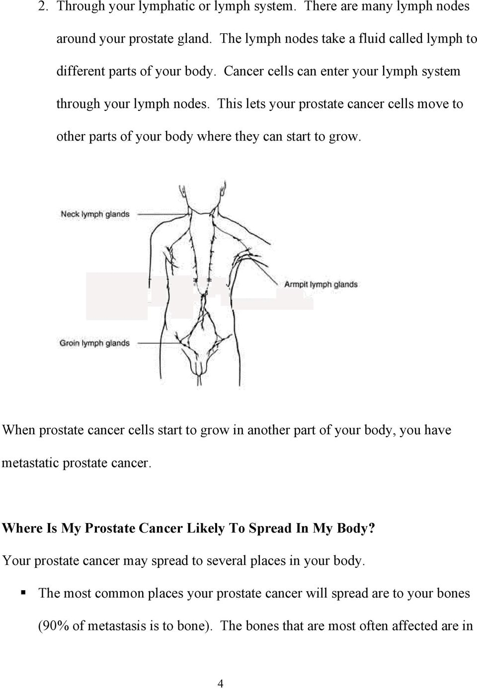 When prostate cancer cells start to grow in another part of your body, you have metastatic prostate cancer. Where Is My Prostate Cancer Likely To Spread In My Body?