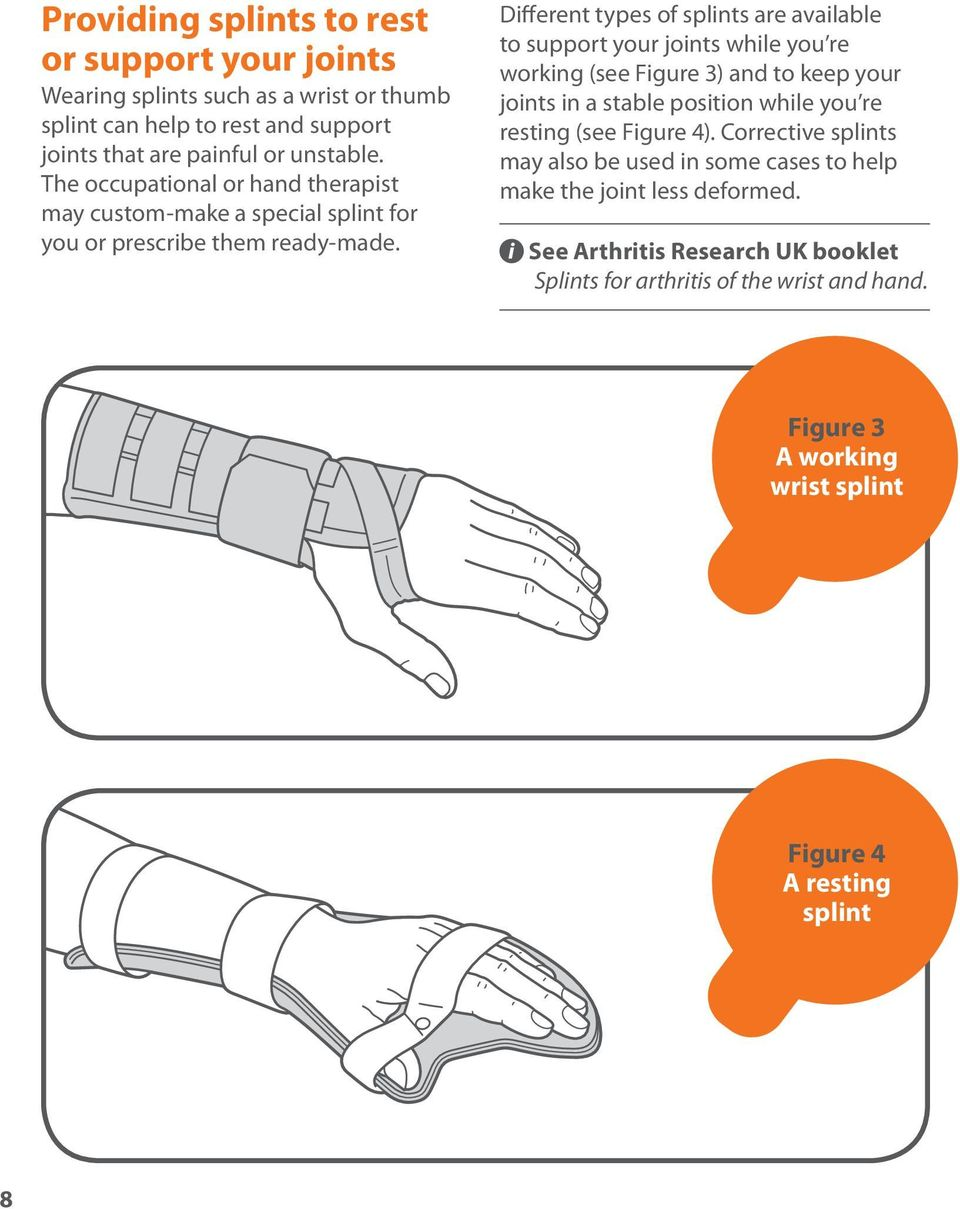 Different types of splints are available to support your joints while you re working (see Figure 3) and to keep your joints in a stable position while you re resting