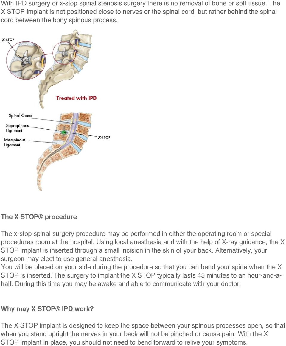The X STOP procedure The x-stop spinal surgery procedure may be performed in either the operating room or special procedures room at the hospital.