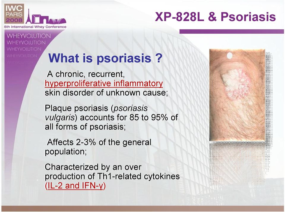 cause; Plaque psoriasis (psoriasis vulgaris) accounts for 85 to 95% of all forms