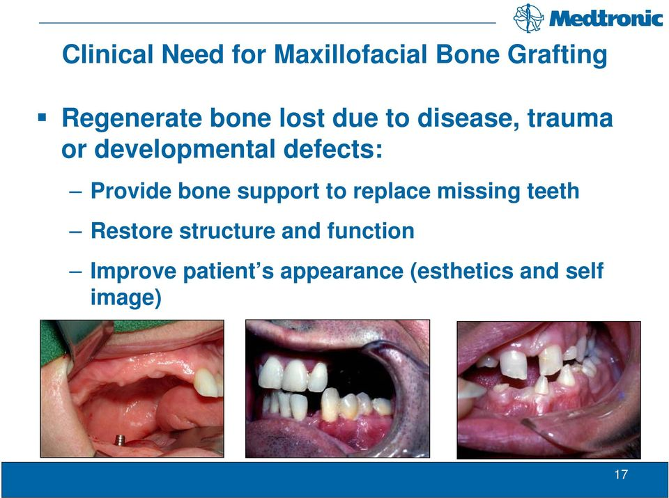 bone support to replace missing teeth Restore structure and