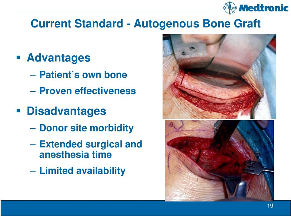 effectiveness Disadvantages Donor site