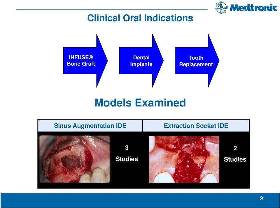 Models Examined Sinus Augmentation IDE