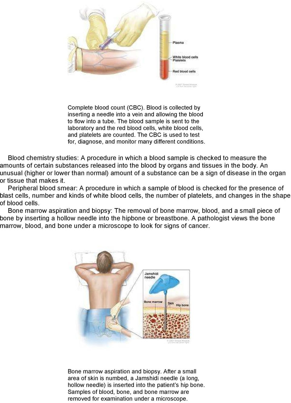 Blood chemistry studies: A procedure in which a blood sample is checked to measure the amounts of certain substances released into the blood by organs and tissues in the body.
