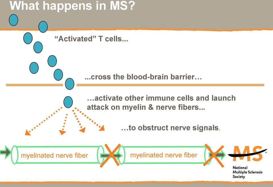 immune cells and launch attack on myelin & nerve
