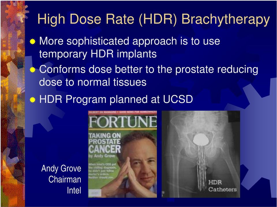 dose better to the prostate reducing dose to normal
