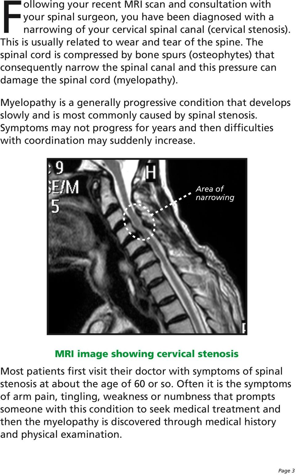 The spinal cord is compressed by bone spurs (osteophytes) that consequently narrow the spinal canal and this pressure can damage the spinal cord (myelopathy).