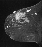 Breast MRI Indications Pre-operative Evaluation Extent of cancer underestimated