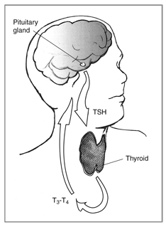 Hypothyroidism What is hypothyroidism? The thyroid gland s production of thyroid hormones (T 3 and T 4 ) is triggered by thyroid-stimulating hormone (TSH), which is made by the pituitary gland.