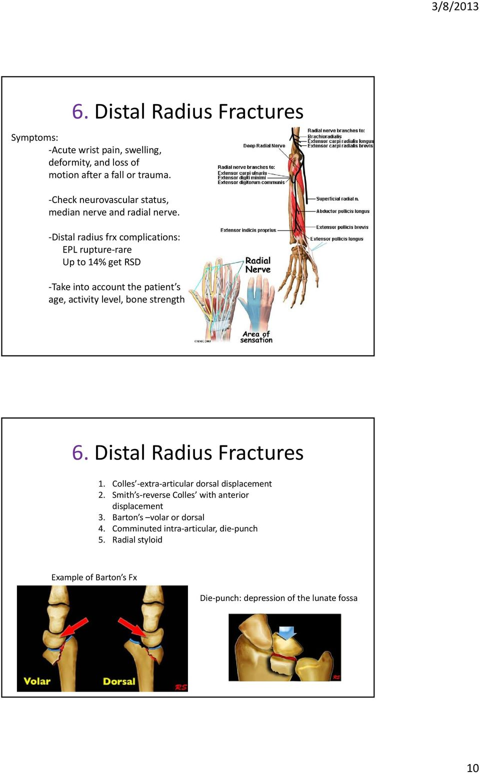 Distal radius frx complications: EPL rupture rare Up to 14% get RSD Take into account the patient s age, activity level, bone strength 6.