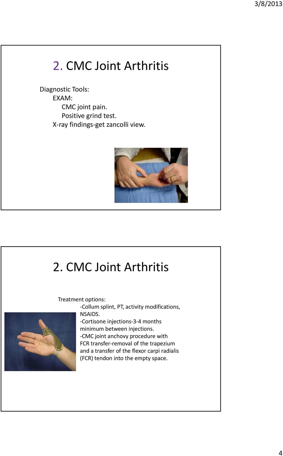 CMC Joint Arthritis Treatment options: Collum splint, PT, activity modifications, NSAIDS.