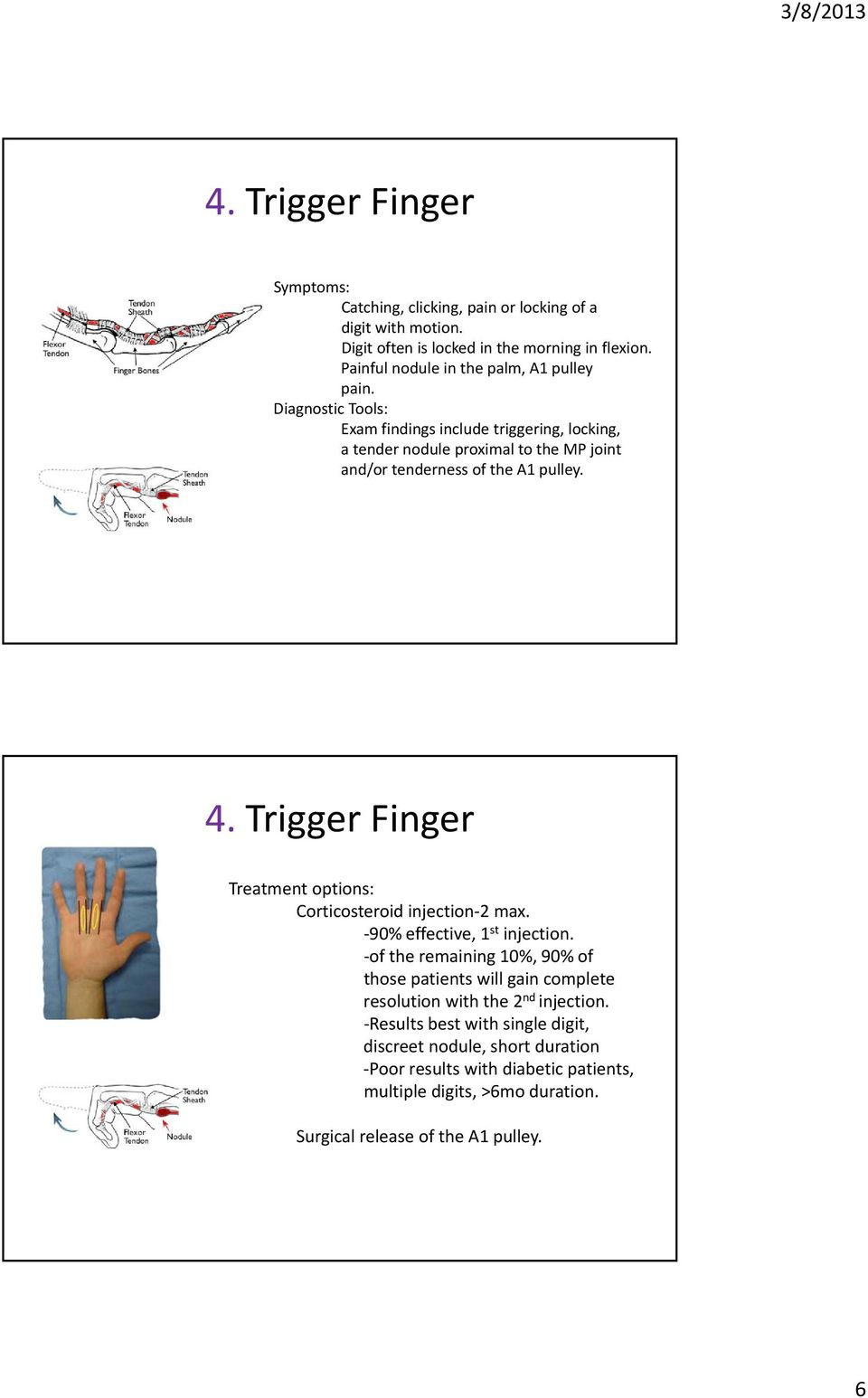 Trigger Finger Treatment options: Corticosteroid injection 2 max. 90% effective, 1 st injection.