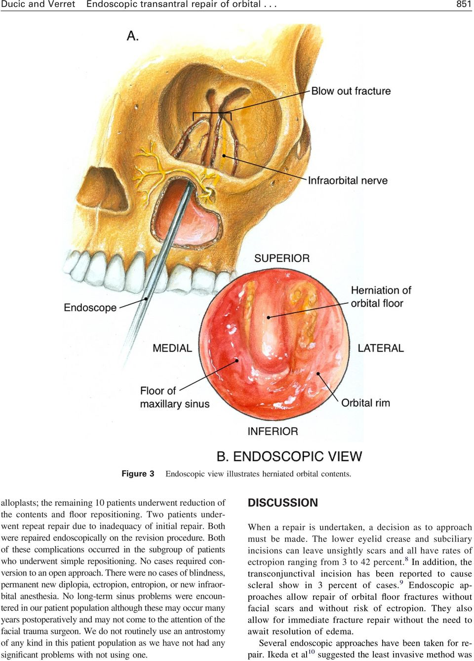 Both were repaired endoscopically on the revision procedure. Both of these complications occurred in the subgroup of patients who underwent simple repositioning.