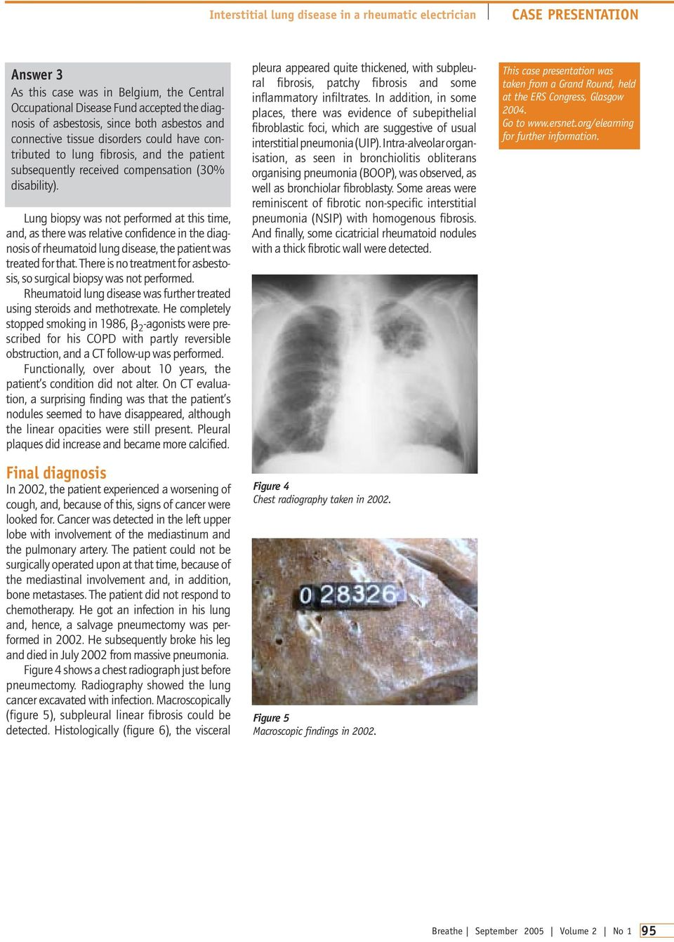 Lung biopsy was not performed at this time, and, as there was relative confidence in the diagnosis of rheumatoid lung disease, the patient was treated for that.