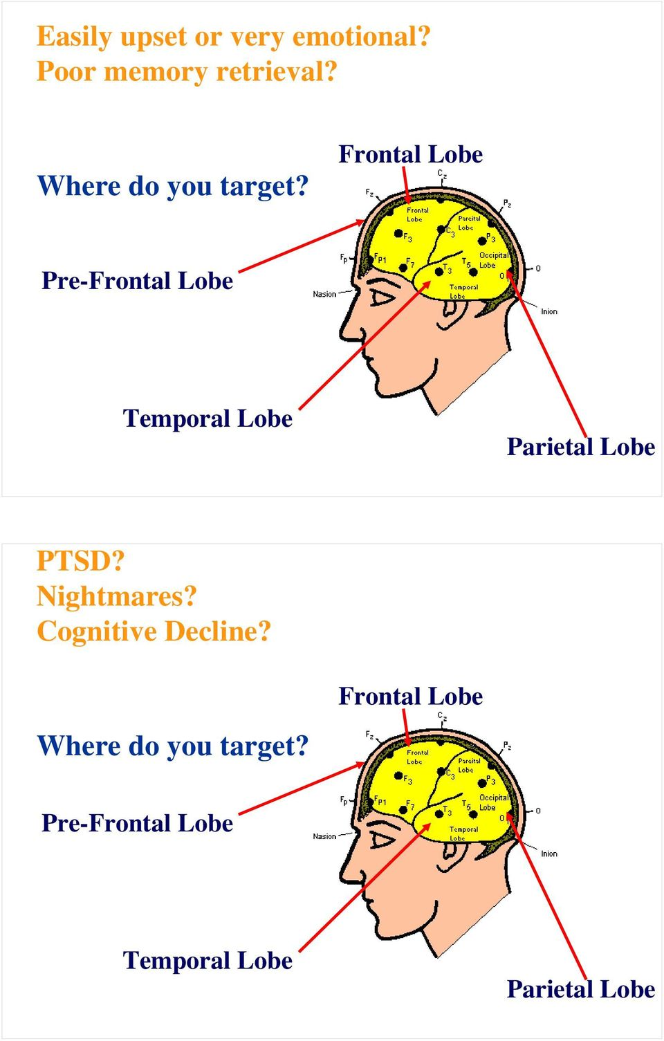 Frontal Lobe Pre-Frontal Lobe Temporal Lobe Parietal Lobe PTSD?
