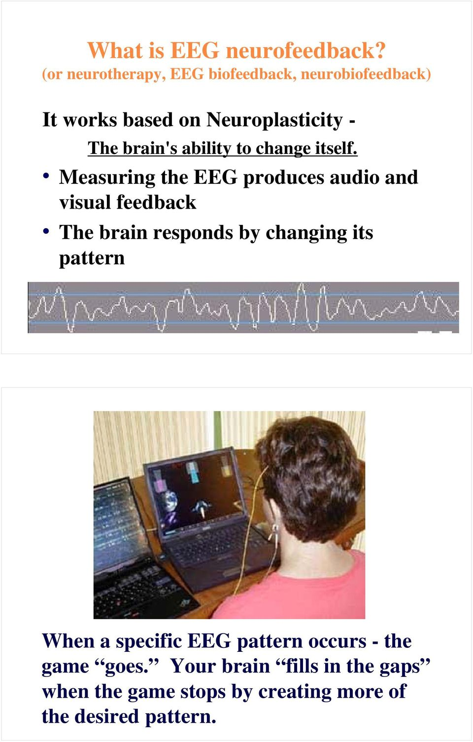 brain's ability to change itself.