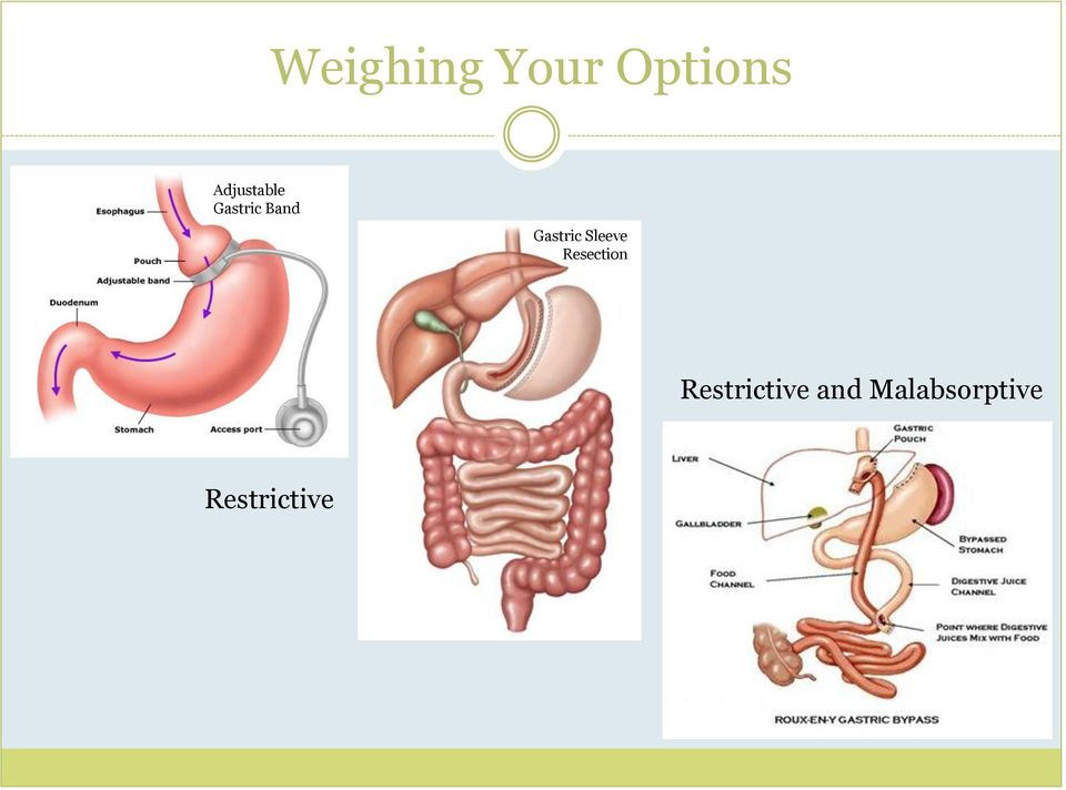 Gastric Sleeve Resection