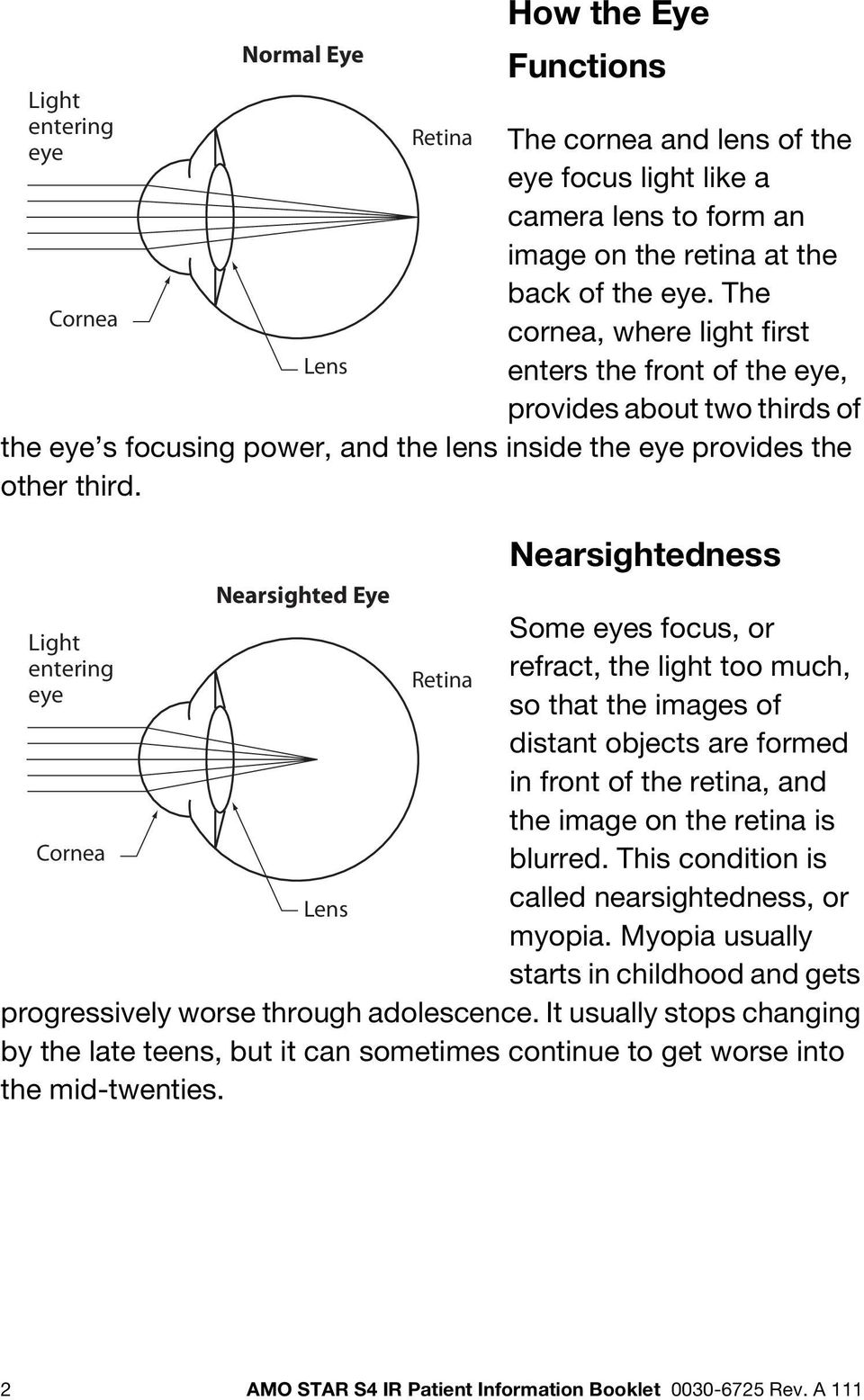 Light entering eye Cornea Normal Eye Lens Nearsighted Eye Lens Retina Retina Nearsightedness Some eyes focus, or refract, the light too much, so that the images of distant objects are formed in front