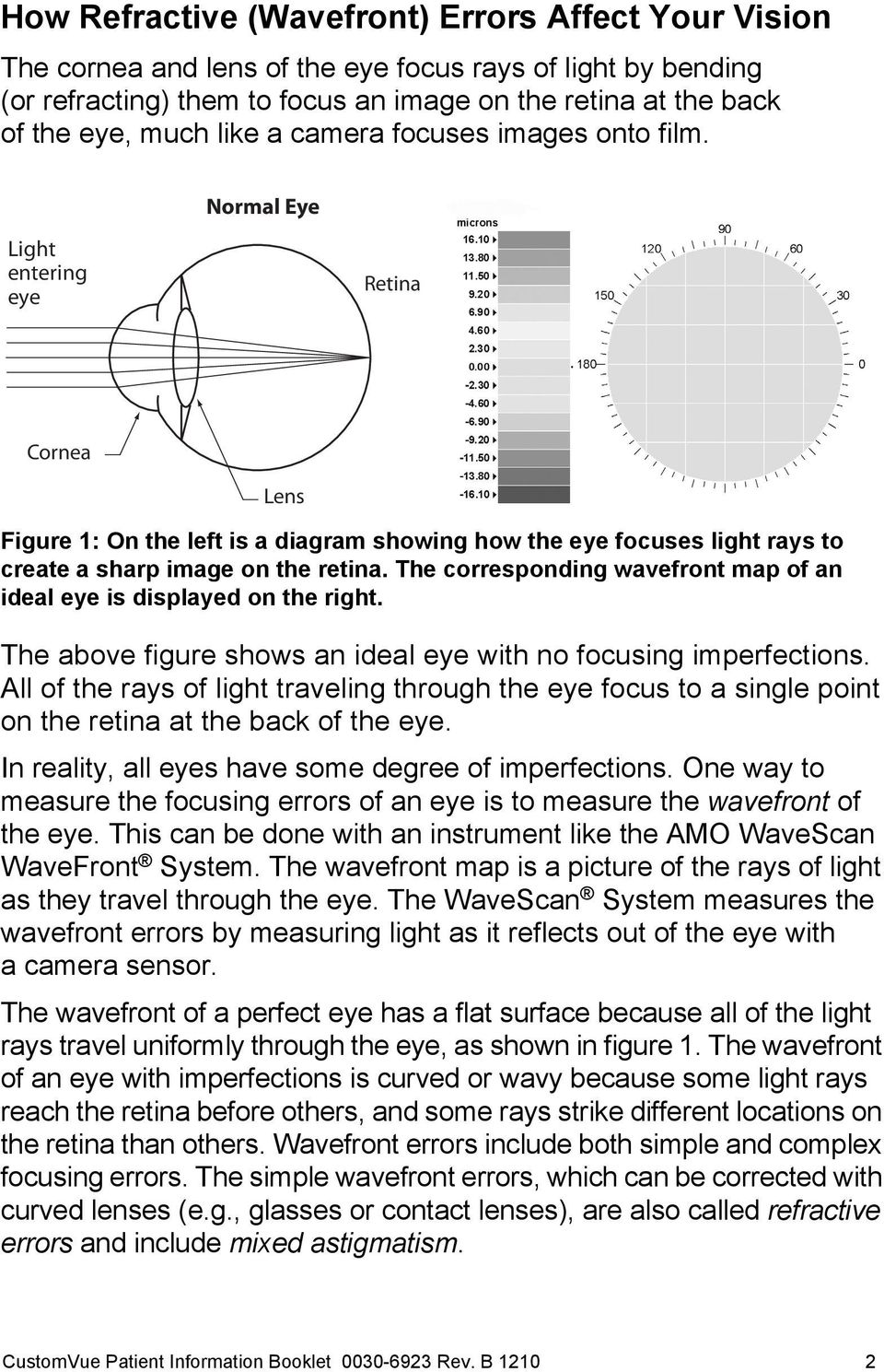 Normal Eye Light entering eye Retina Cornea Lens Figure 1: On the left is a diagram showing how the eye focuses light rays to create a sharp image on the retina.